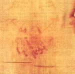Plaies de la nuque de Notre-Seigneur sur le Saint-Suaire